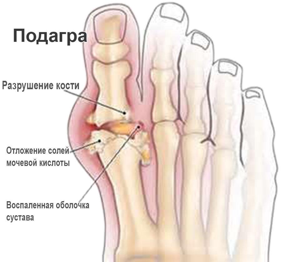 Соли мочевой кислоты в суставах лечение артроз сустава большого пальца руки протезирование
